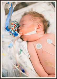 Edison's story- a baby in the nicu